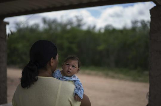 Zika : 641 cas de microcéphalie et 139 bébés décédés