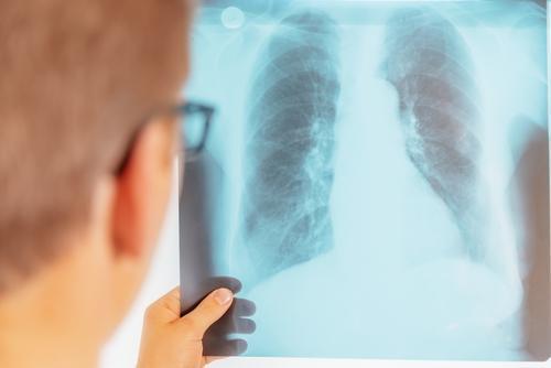 Tuberculose : l'OMS recommande un test de diagnostic rapide