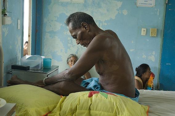Tuberculose : dix millions de nouveaux cas en 2015