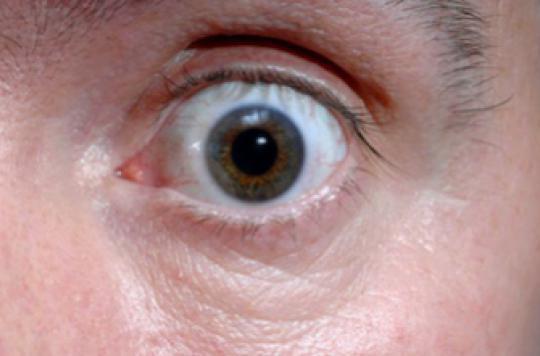 Cécité : un implant français testé dans la rétinite pigmentaire