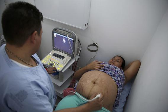 Zika : le risque de microcéphalie est faible en fin de grossesse