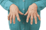 Polyarthrite rhumatoïde : traiter tôt pour protéger ses articulations