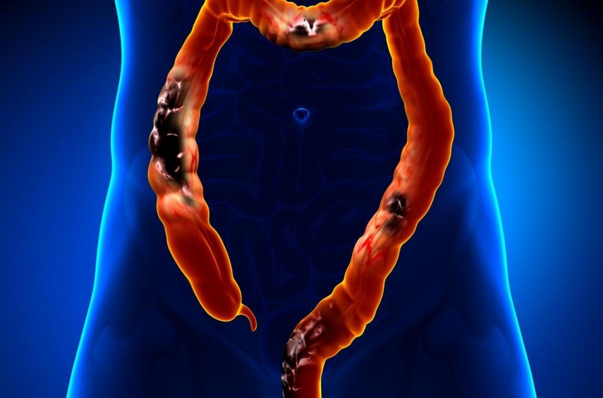 cancer colon ascendent simptome)