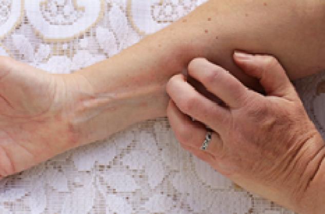 28e2ebb20bf9 Eczéma des mains   le contact avec l allergène doit être évité - Pourquoi  Docteur