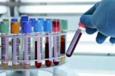 Hémochromatose : l'excès de fer peut nuire à la santé