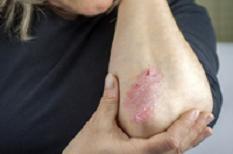 Psoriasis : une maladie inflammatoire de la peau et des ongles à traiter