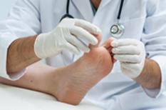 Ongle incarné : il fait souffrir l'orteil et expose à l'infection