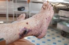 Vascularites : fièvre, fatigue et souffrance d'organes