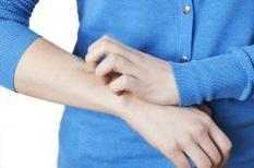 Gale : des démangeaisons très contagieuses de la peau