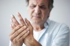 Algoneurodystrophie  : un syndrome douloureux régional complexe