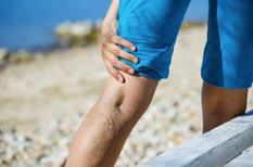 Varices : une fragilité chronique des veines qu'il faut compenser