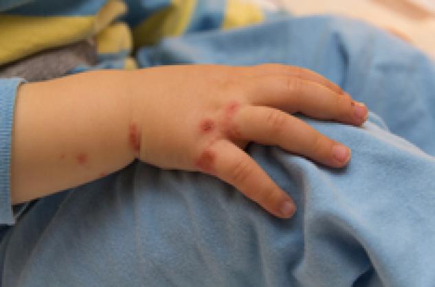 Probl mes de peau chez les enfants l ruption cutan e for Bouton cuisse interieur