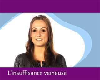 L'insuffisance veineuse : les traitements
