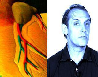 L'infarctus du myocarde : comment le repérer